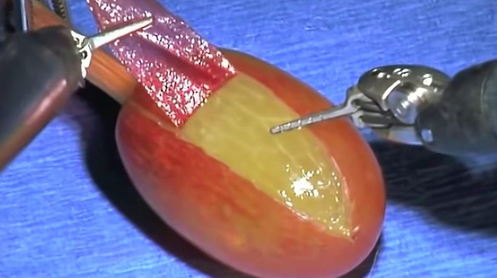 Life-Saving Grape Surgery Performed at Loma Linda